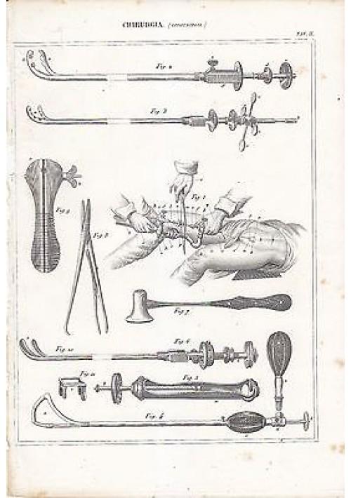 CHIRURGIA LITOTRIPSIA INCISIONE STAMPA RAME 1866 TAVOLA ORIGINALE ANTICA